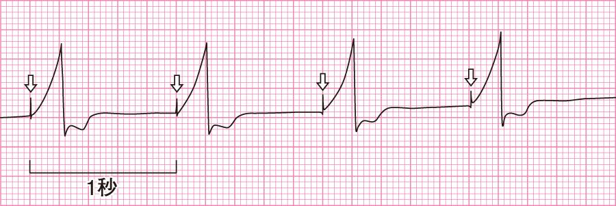 設定心拍数(周期)の心電図