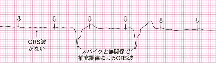 ペーシング不全の心電図