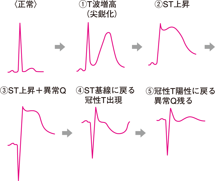 急性心筋梗塞の心電図の経時的変化