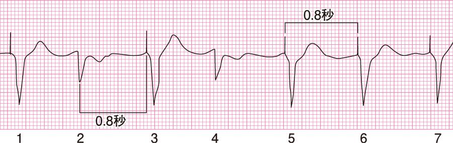 抑制(I)された心電図