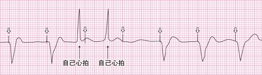 アンダーセンシング状態の心電図