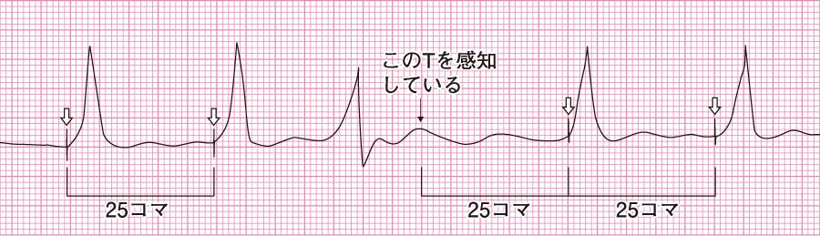 オーバーセンシング状態の心電図
