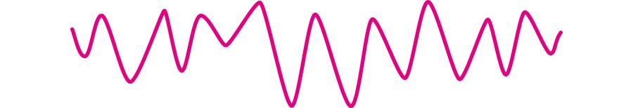 心室細動の心電図所見