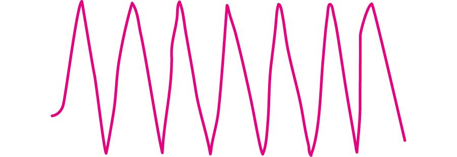 無脈性心室頻拍の心電図所見
