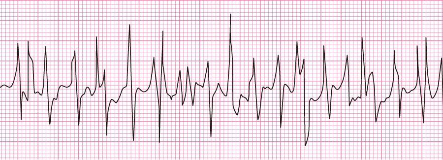 歯磨き不整脈の心電図