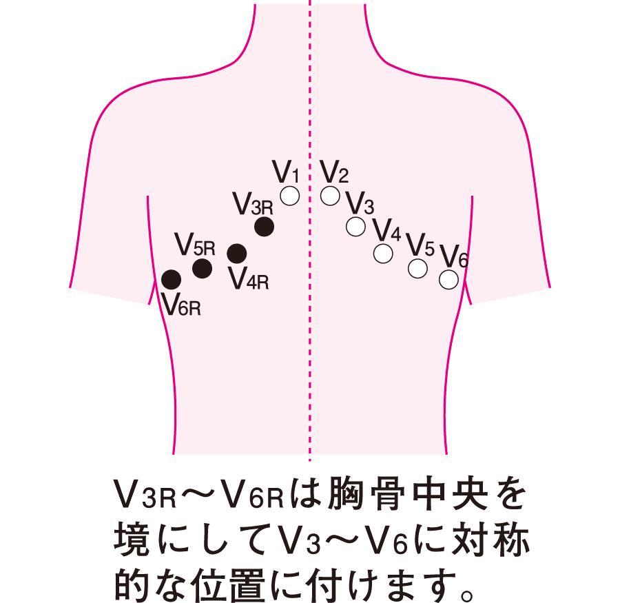 右側胸部誘導の位置