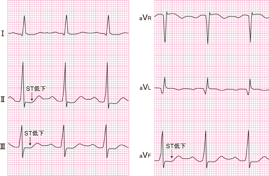 心内膜下梗塞の心電図