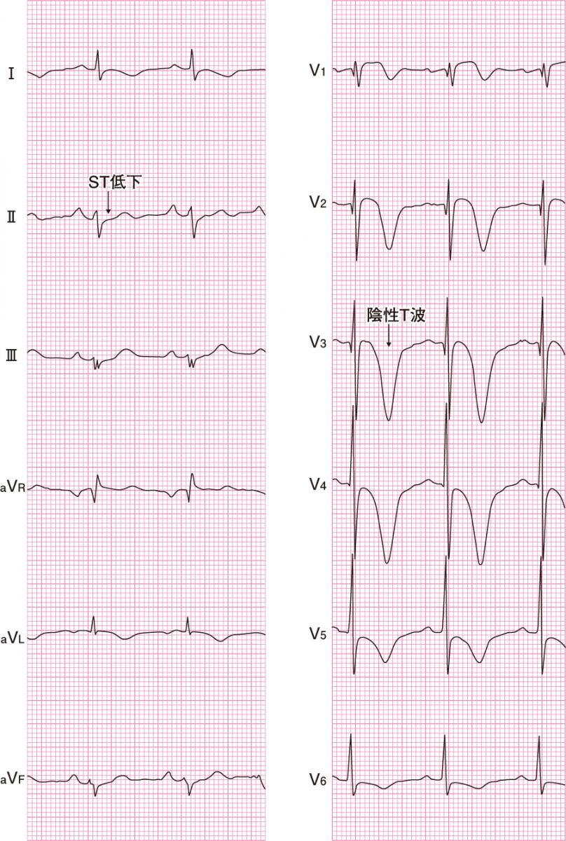 非ST上昇型心筋梗塞の心電図