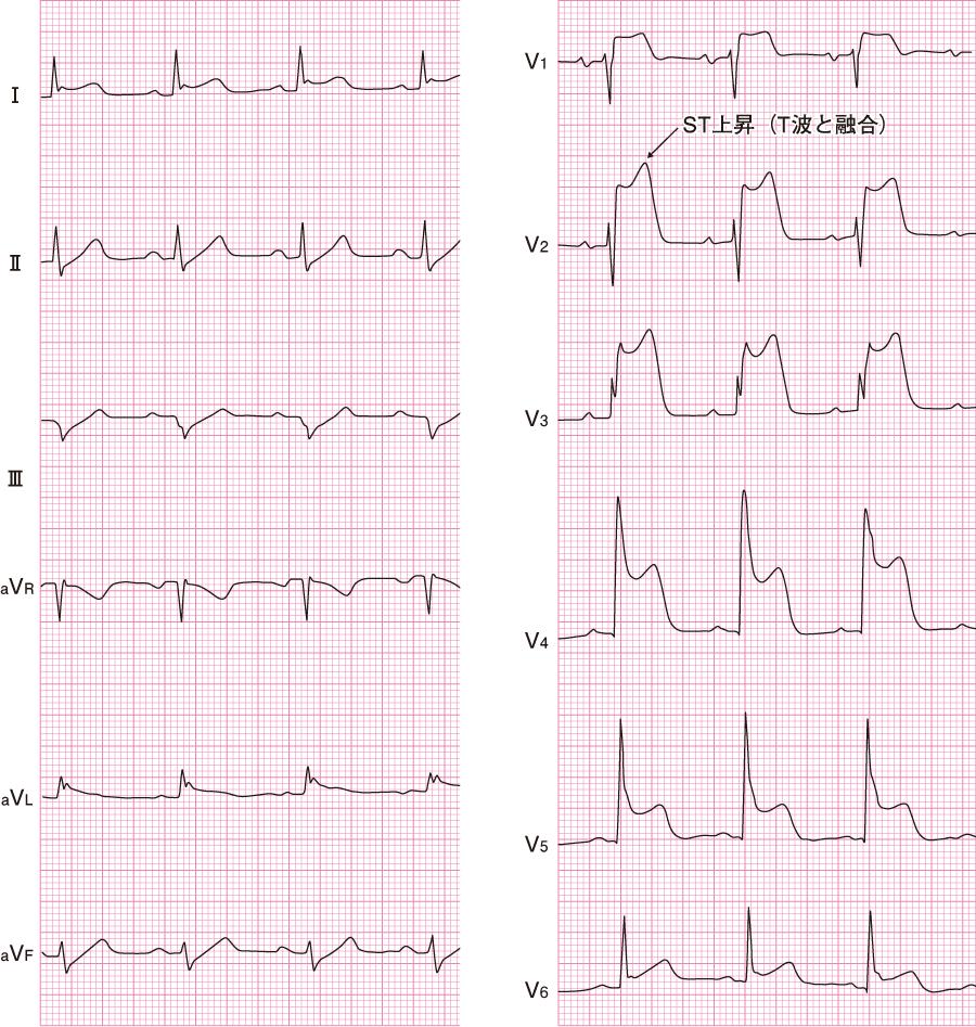 異型狭心症(発作時)の心電図