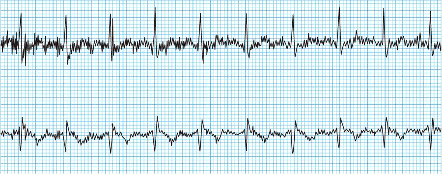 ノイズの入った心電図波形