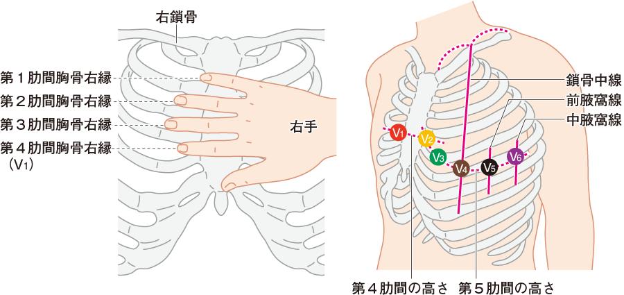 胸部電極の装着位置