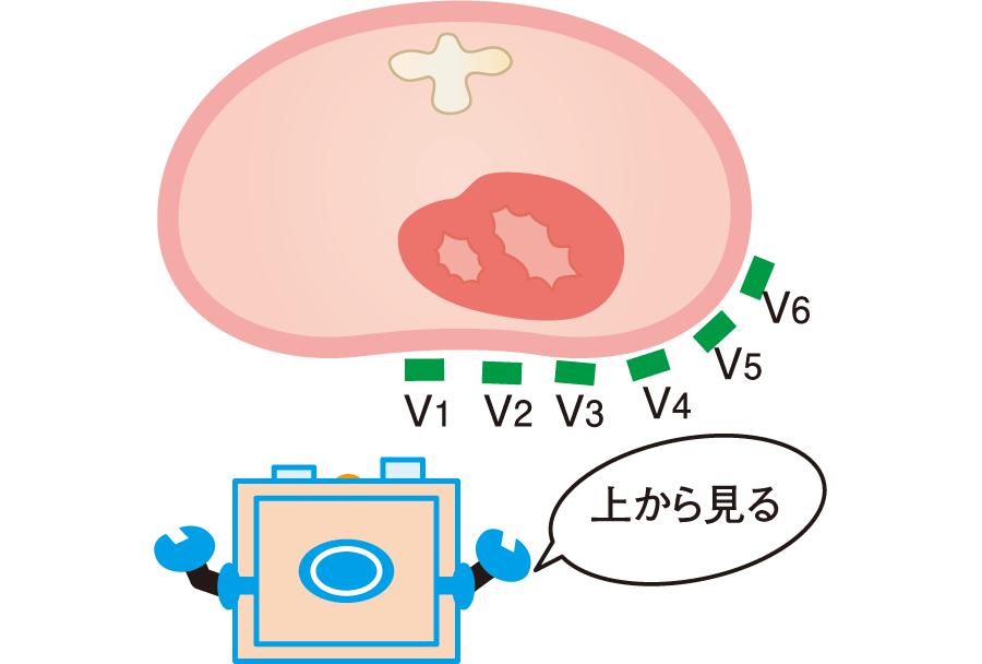 胸部誘導(水平面)