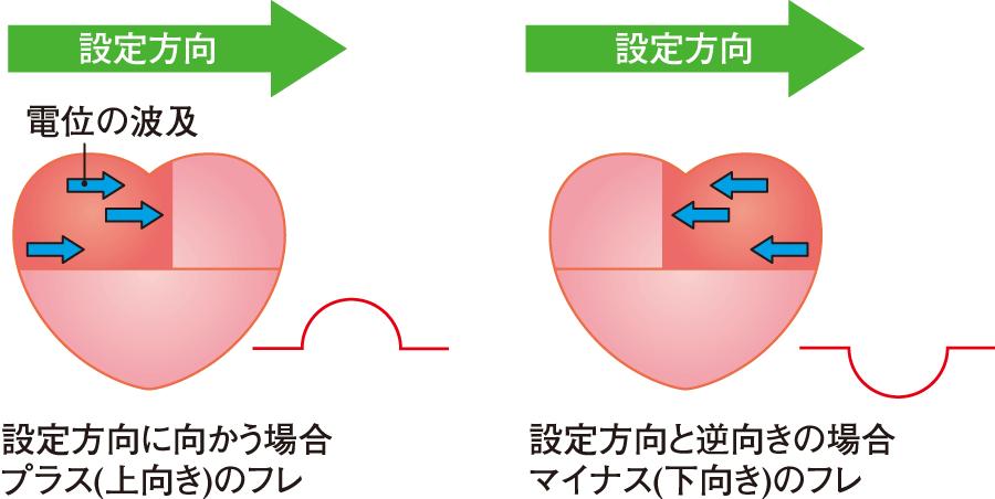 設定方向と電位の波及