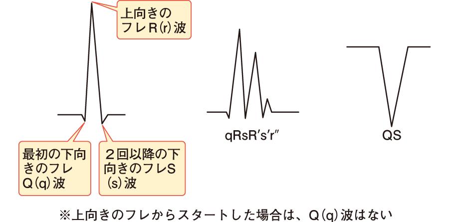 QRS波の表記方法