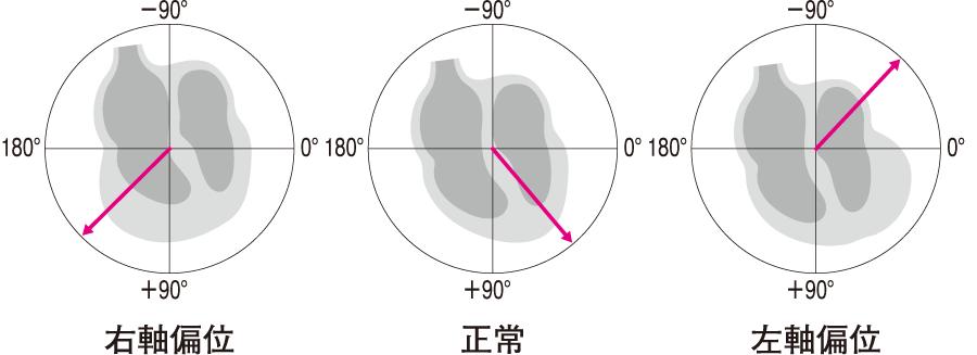 電気軸の変化