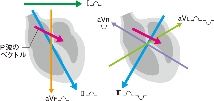四肢誘導でのP波の平均ベクトル