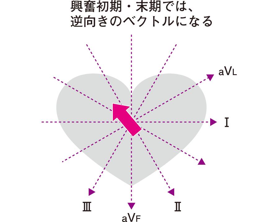 四肢誘導でのQRS波の末期のベクトル