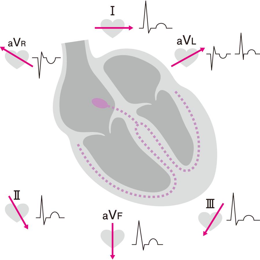 四肢誘導でのT波のベクトル