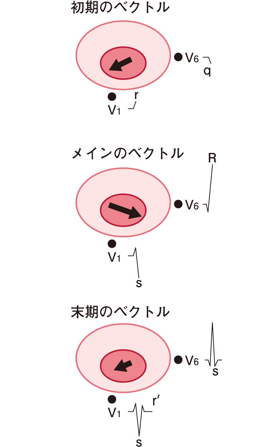 胸部誘導でのQRS波のベクトル