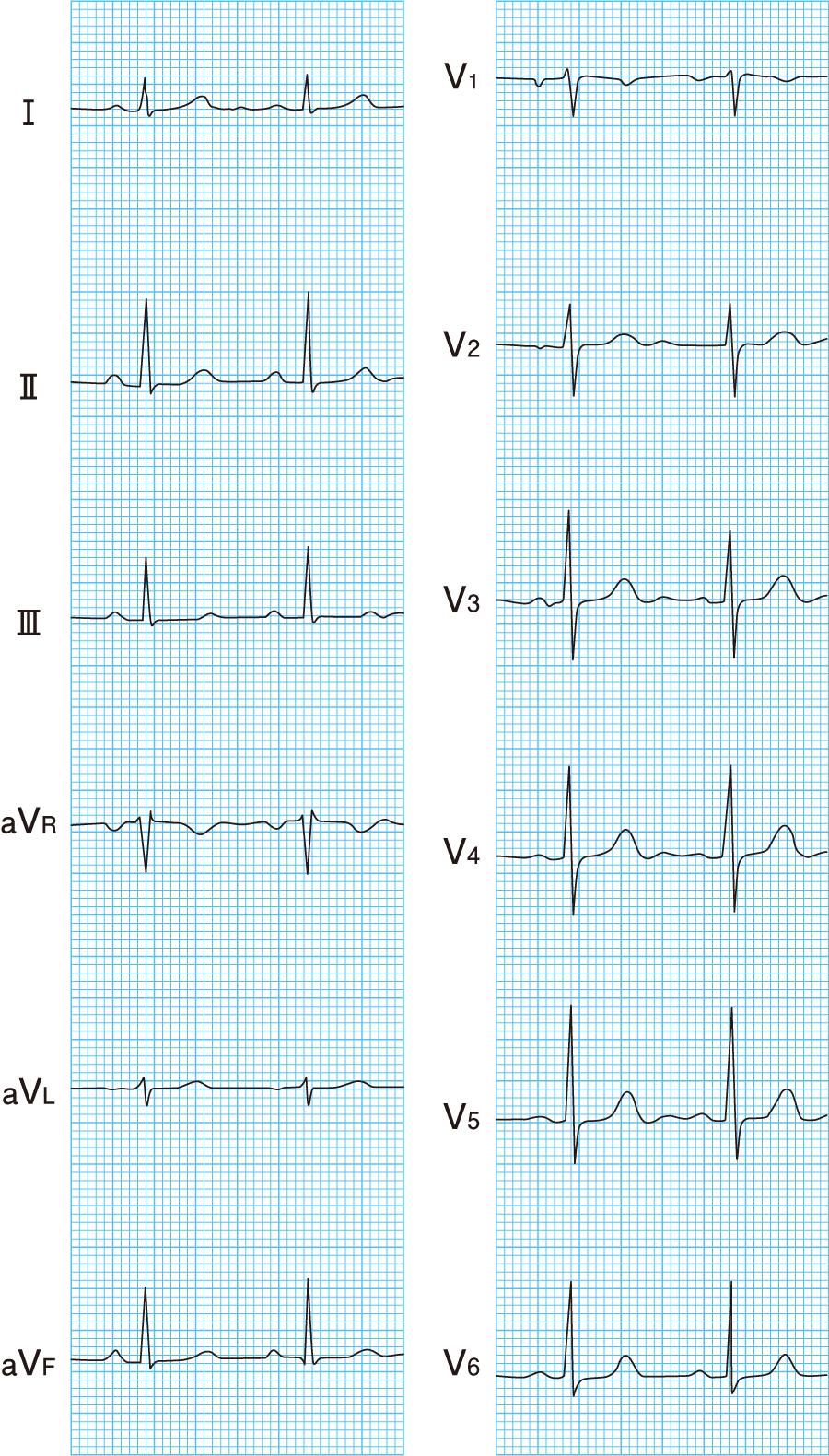 標準12誘導心電図
