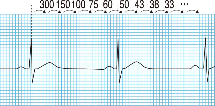心電図波形からわかる心拍数