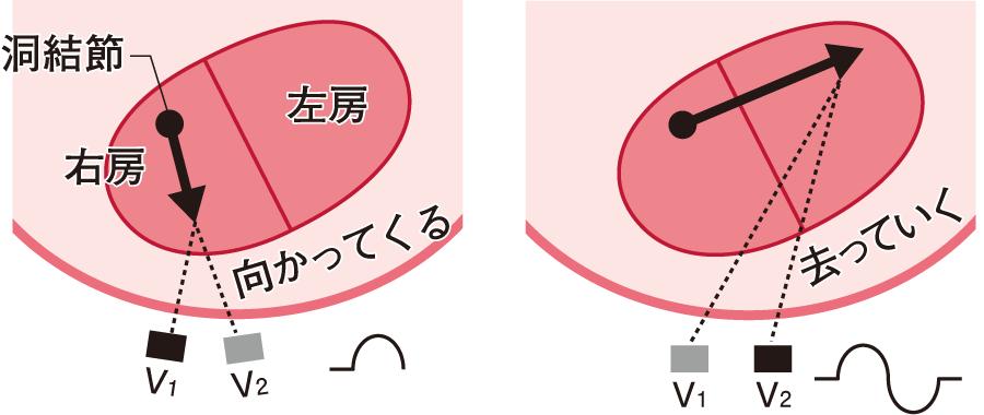 P波の二相性