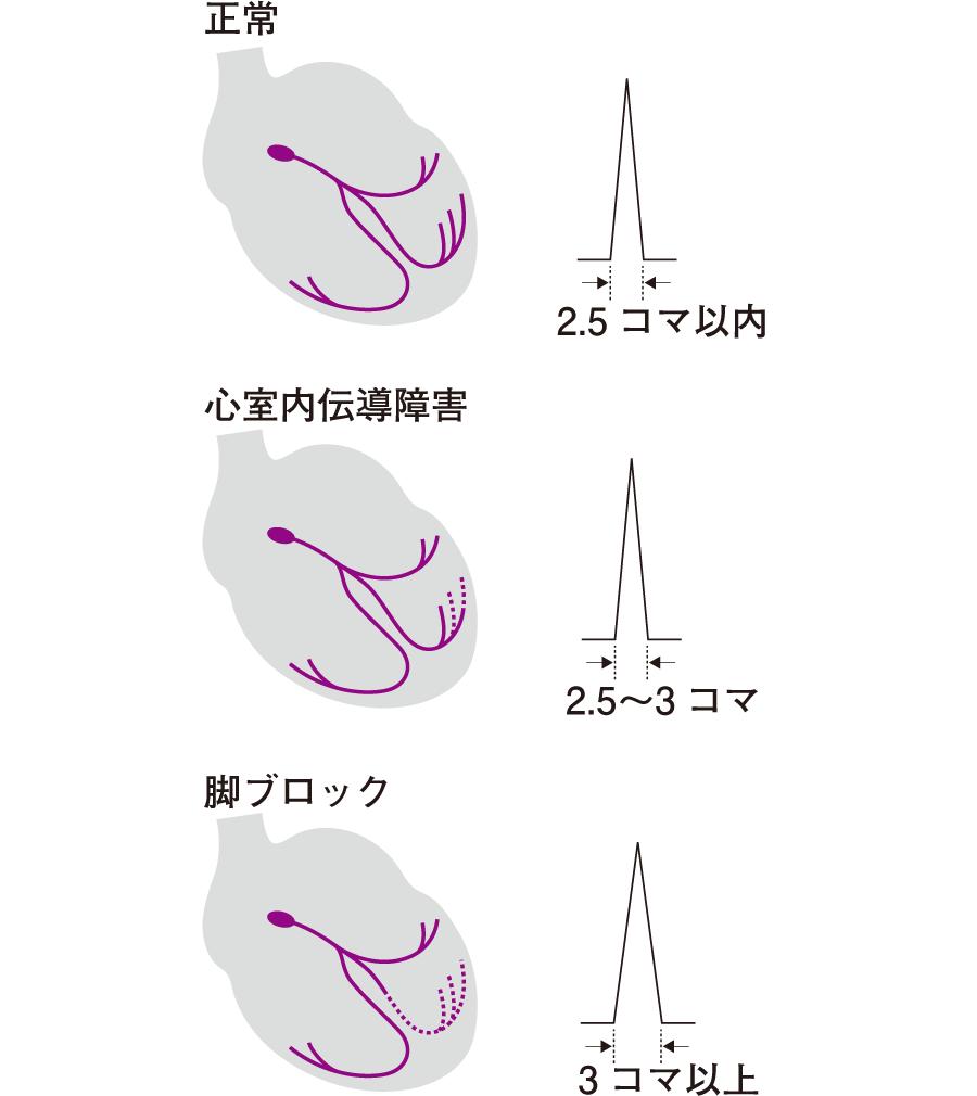 QRS波の幅の異常