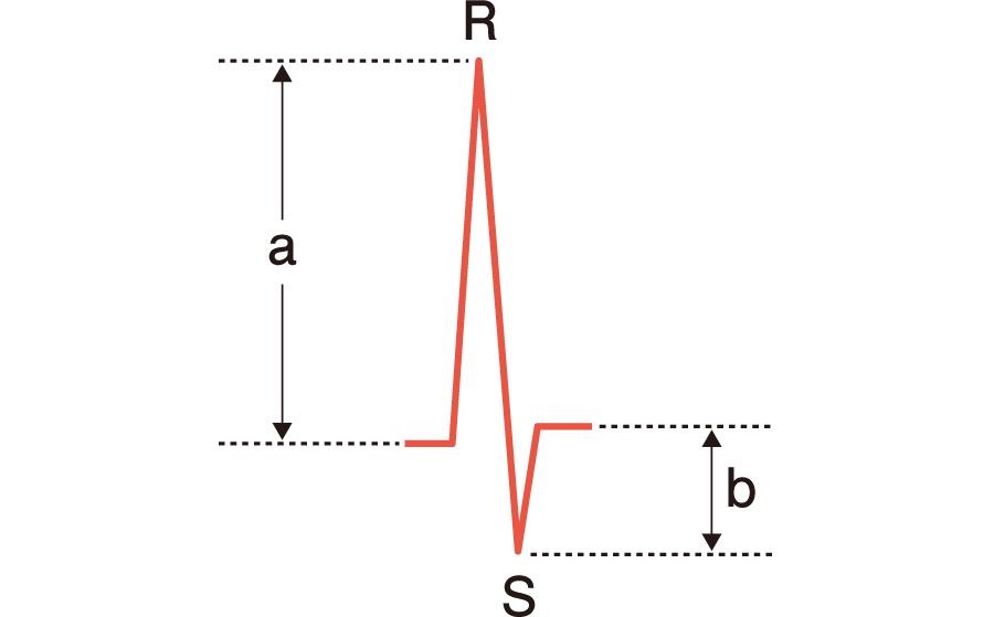 QRS波の高さとは