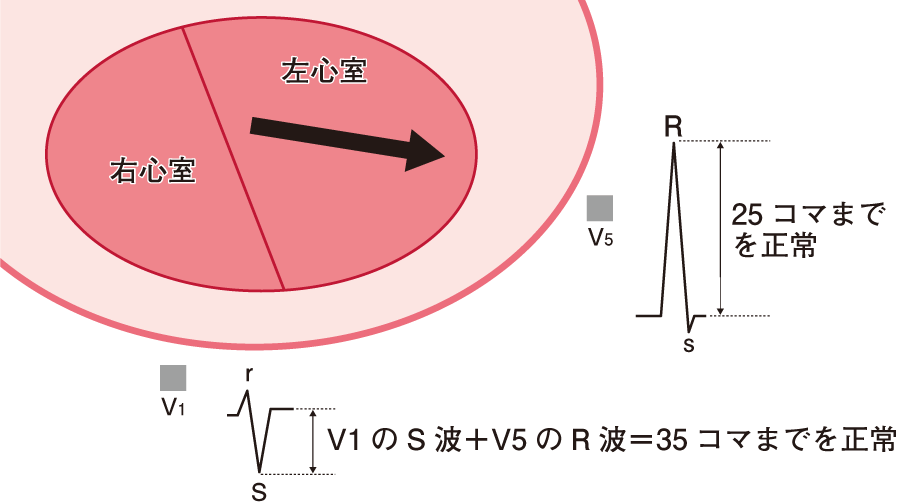QRS波の高さの異常