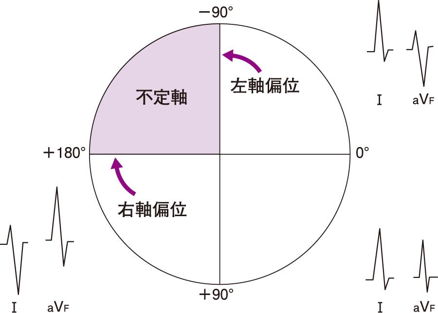QRS波の平均ベクトルの方向