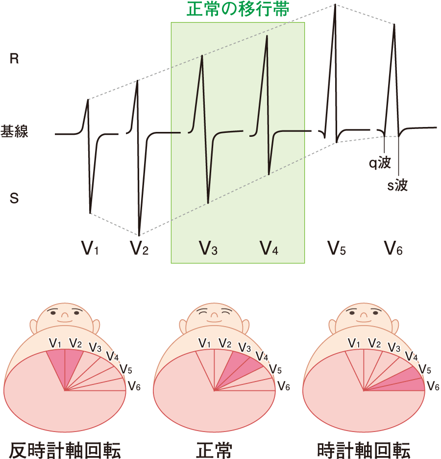 QRS波の移行帯