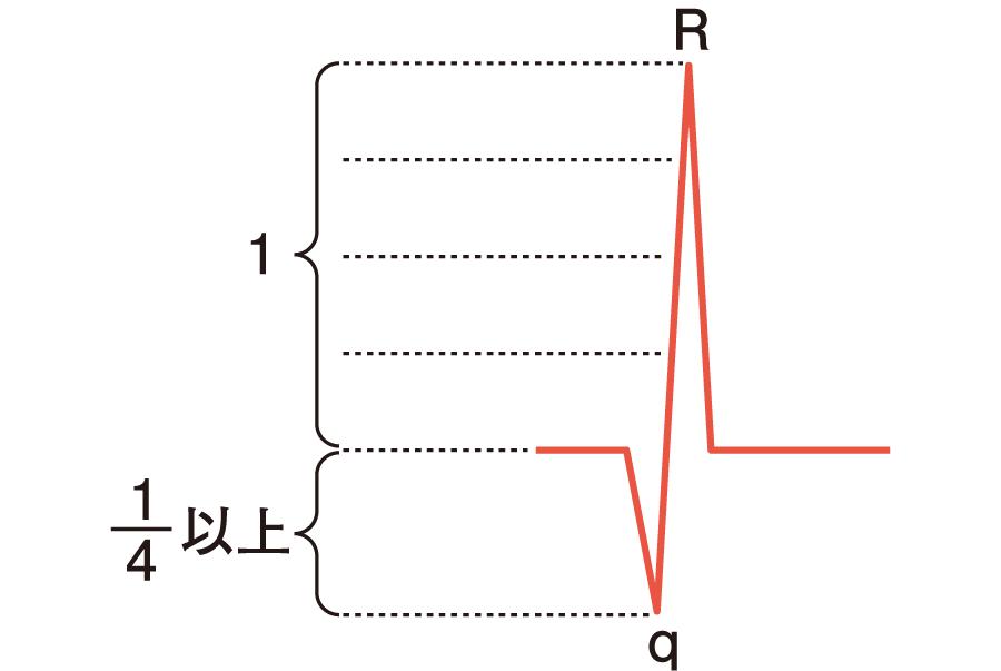 異常Q波の定義
