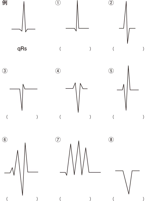 の アイン 三角形 トーベン 心電図:心臓電気軸
