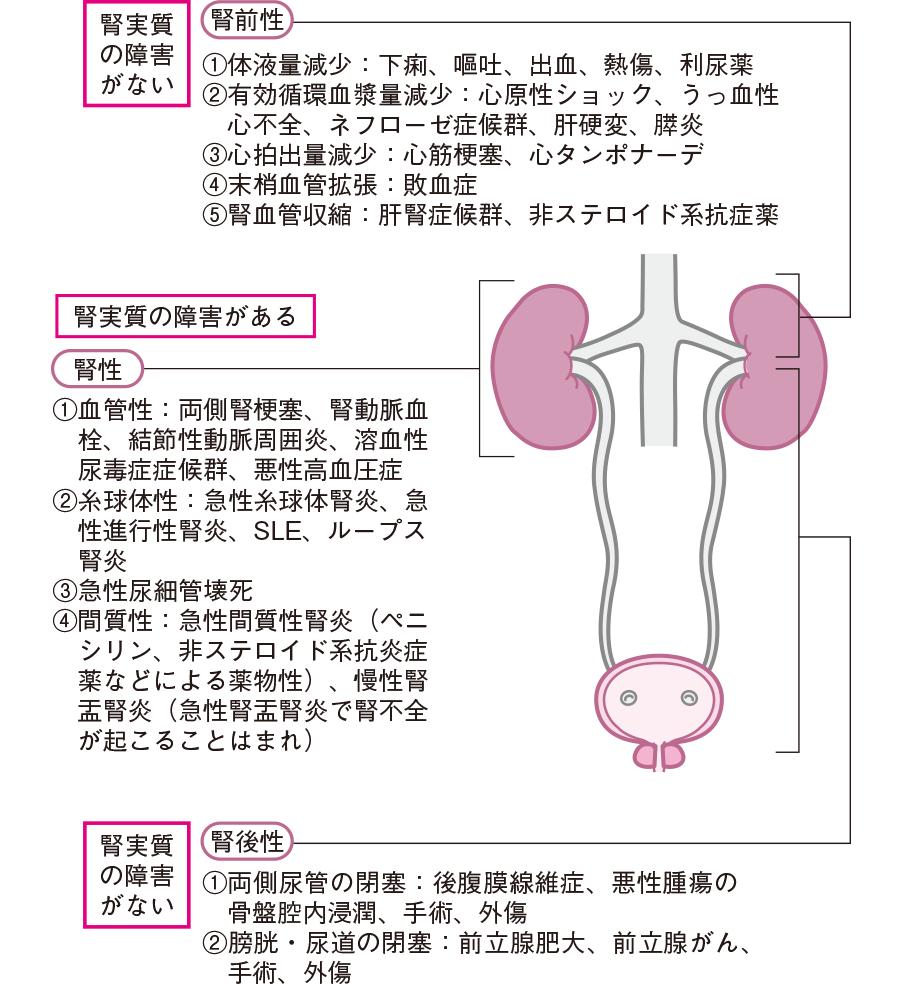 急性腎不全の原因