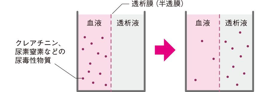 透析の原理
