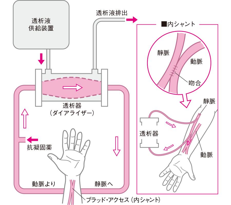 血液透析の仕組み(内シャント)