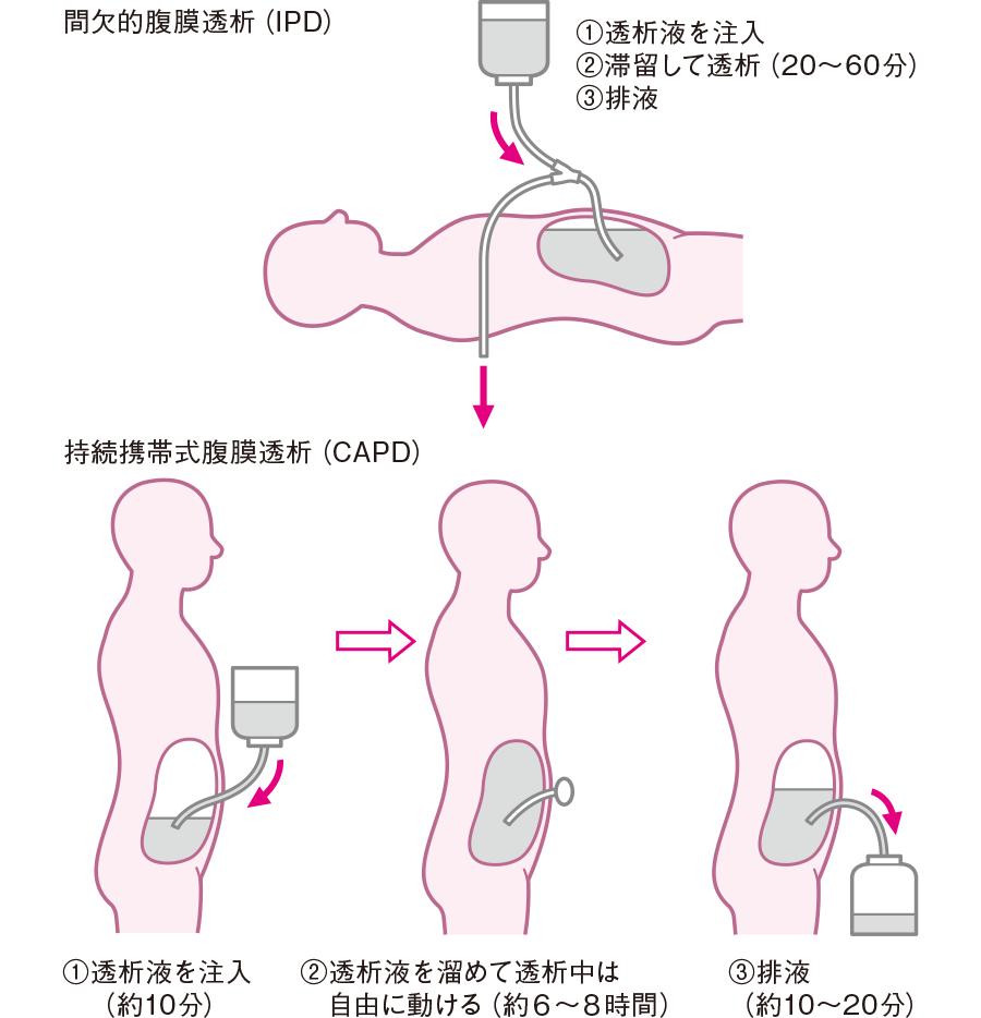 腹膜透析(間欠的腹膜透析と持続携帯式腹膜透析)