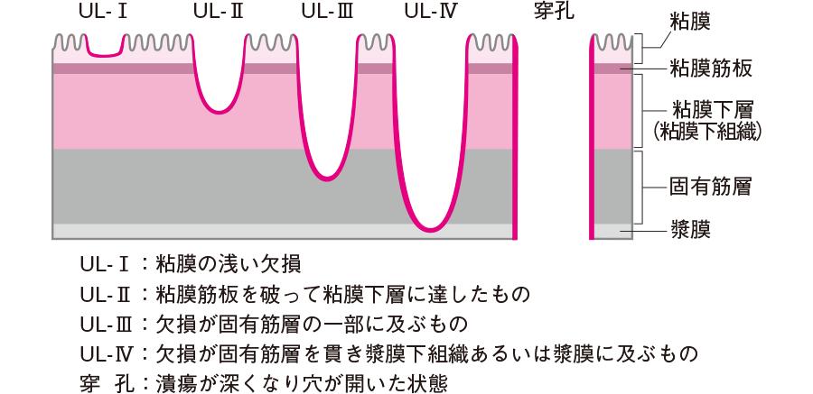 胃潰瘍・十二指腸潰瘍の分類因