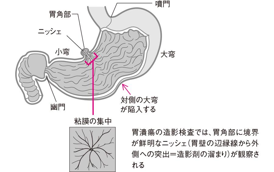 胃潰瘍に見られるX 線ニッシェ像