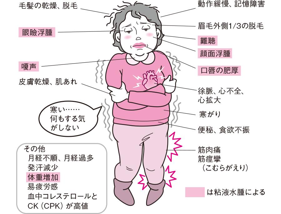 甲状腺機能低下症の症状