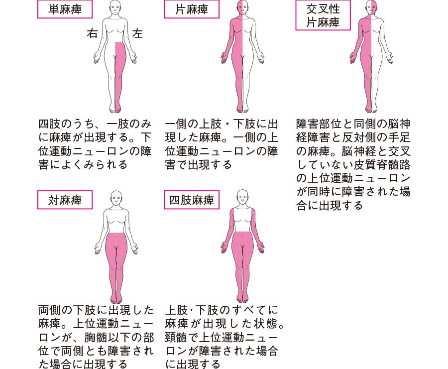 運動麻痺の種類