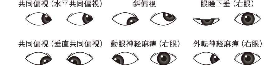 眼球の位置の異常