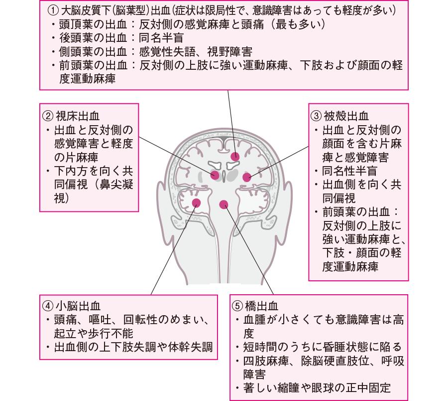 脳出血の部位と症状