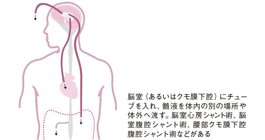 水頭症に対するシャント術