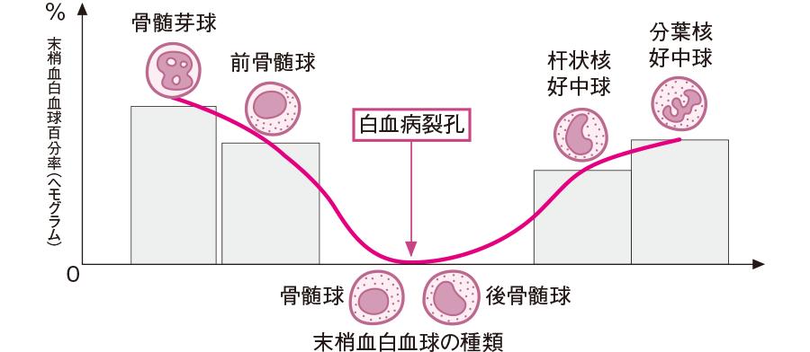 急性骨髄性白血病の白血病裂孔