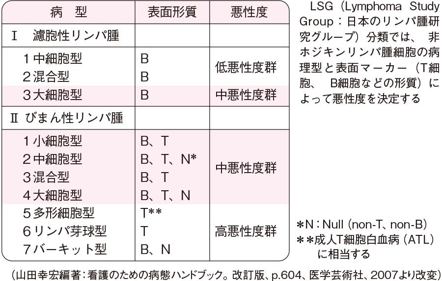 非ホジキンリンパ腫のLSG分類