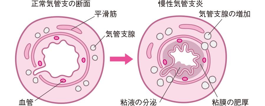 慢性気管支炎の気管内腔