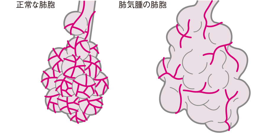 肺気腫の肺胞