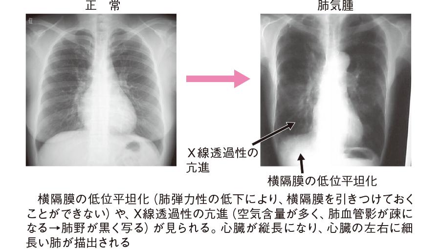 肺気腫患者の胸部X 線写真