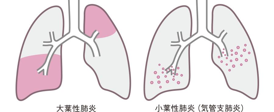 大葉性肺炎と小葉性肺炎
